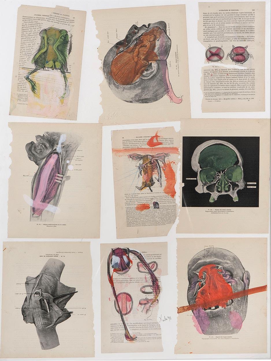 Anatomija, 1990